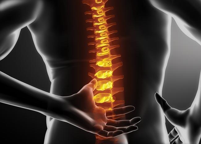 Πώς μπορώ να αντιμετωπίσω τον πόνο της μέσης; thumbnail