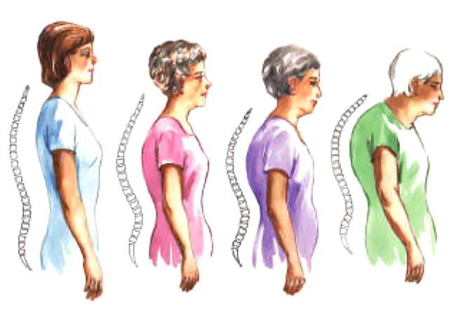 Πότε πρέπει να κάνω εξέταση για την οστεοπόρωση;  thumbnail