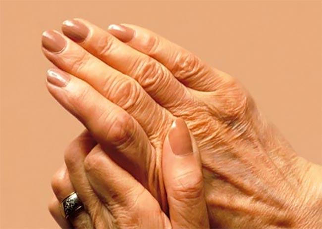 Πόσο επικίνδυνη είναι η ρευματοειδής αρθρίτιδα; thumbnail