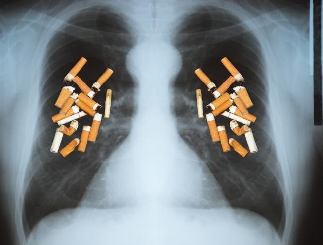 Πώς εμφανίζεται ο καρκίνος του πνεύμονα; thumbnail