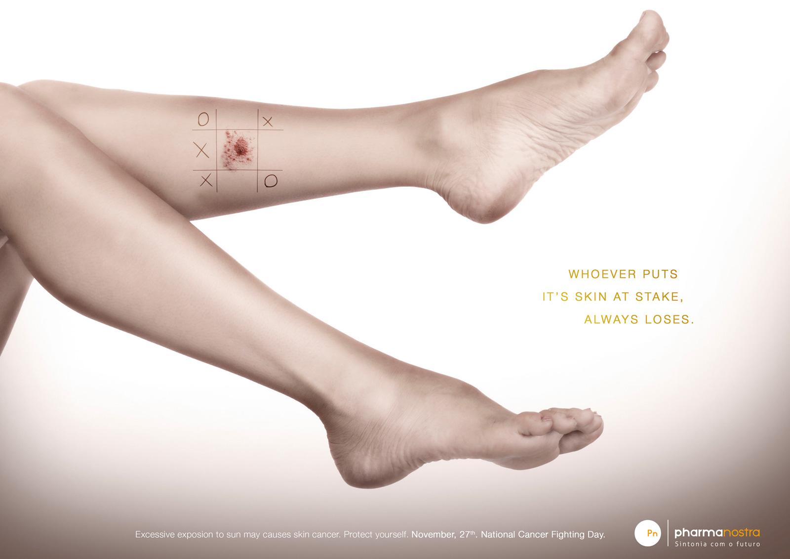 Δωρεάν εξετάσεις για τον καρκίνο του δέρματος.Πού; thumbnail