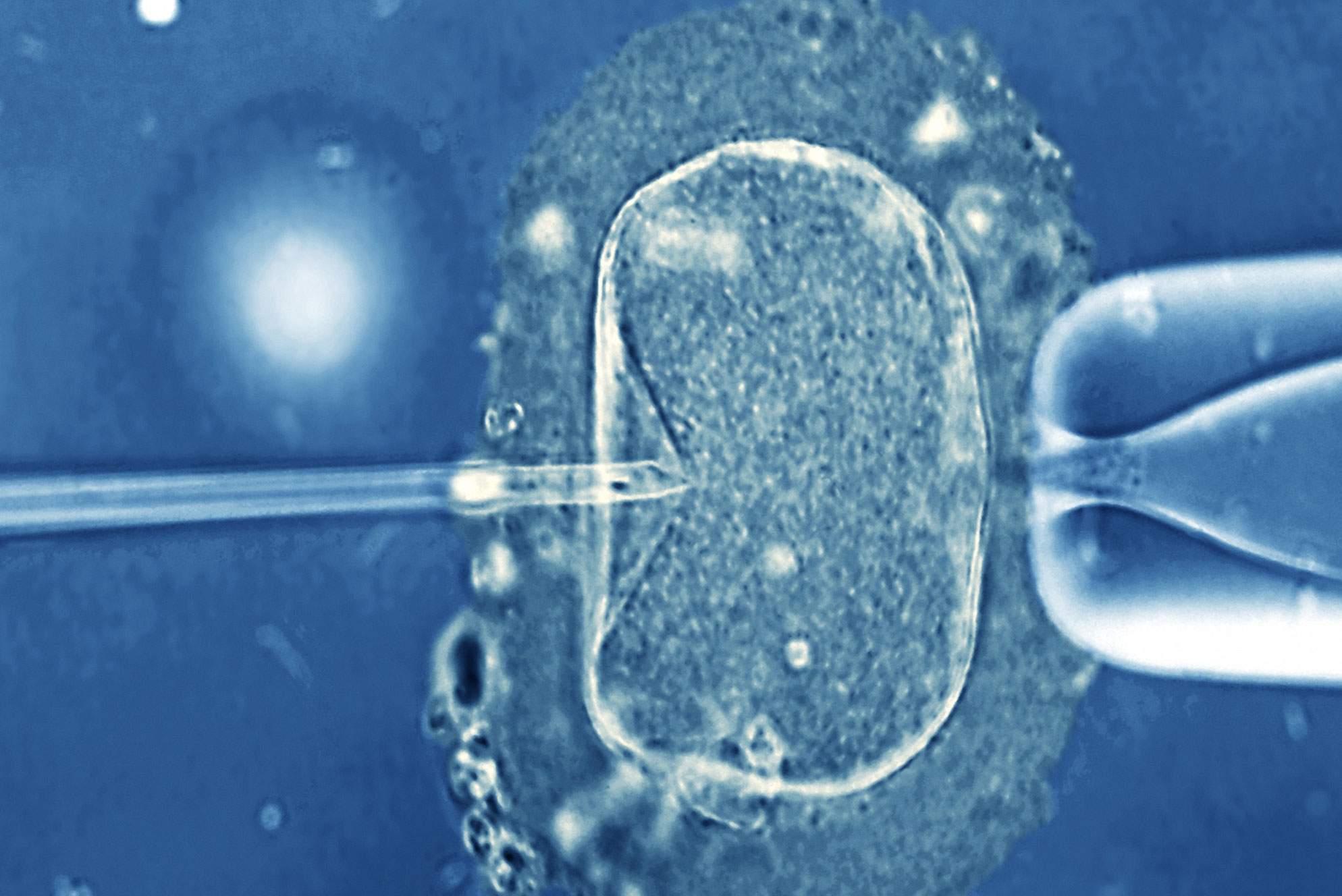 Γέννηση μωρού με πρωτοποριακή μέθοδο εξωσωματικής thumbnail