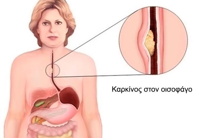 Καρκίνος οισοφάγου: Οι πρώτες ενδείξεις και τα στάδια. thumbnail