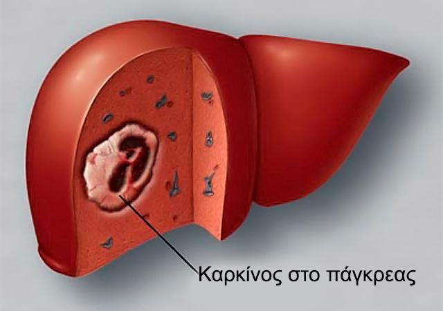 Καρκίνος στο πάγκρεας: Τα αίτια και η διάγνωση. thumbnail