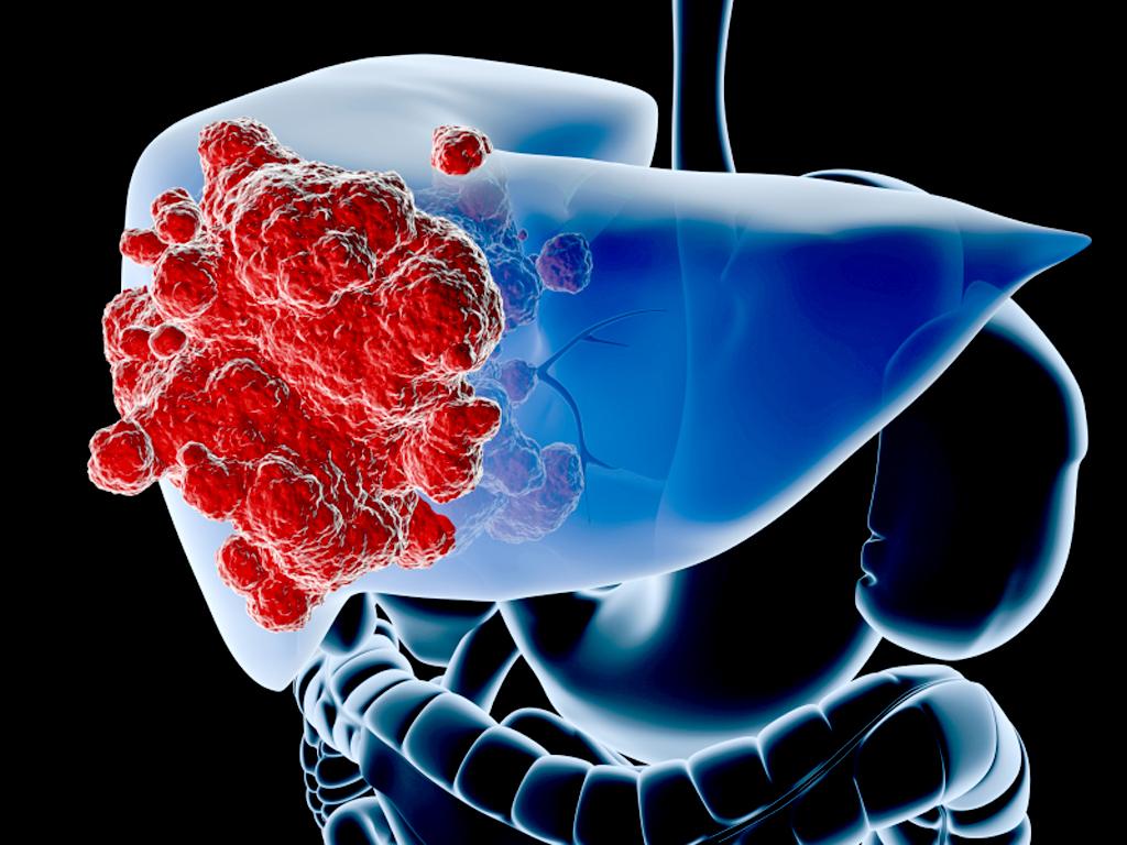 Μεταστατικός καρκίνος στο ήπαρ. Πώς αντιμετωπίζεται;  thumbnail