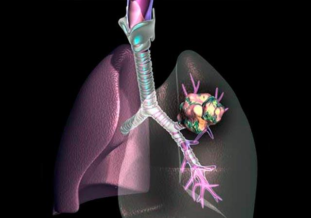 Καρκίνος του πνεύμονα. Μπορεί να προληφθεί; thumbnail
