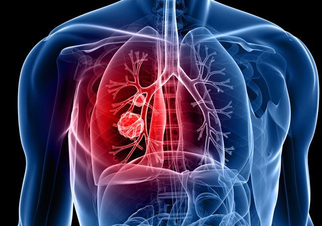 Καρκίνος του πνεύμονα. Πώς αντιμετωπίζεται; thumbnail
