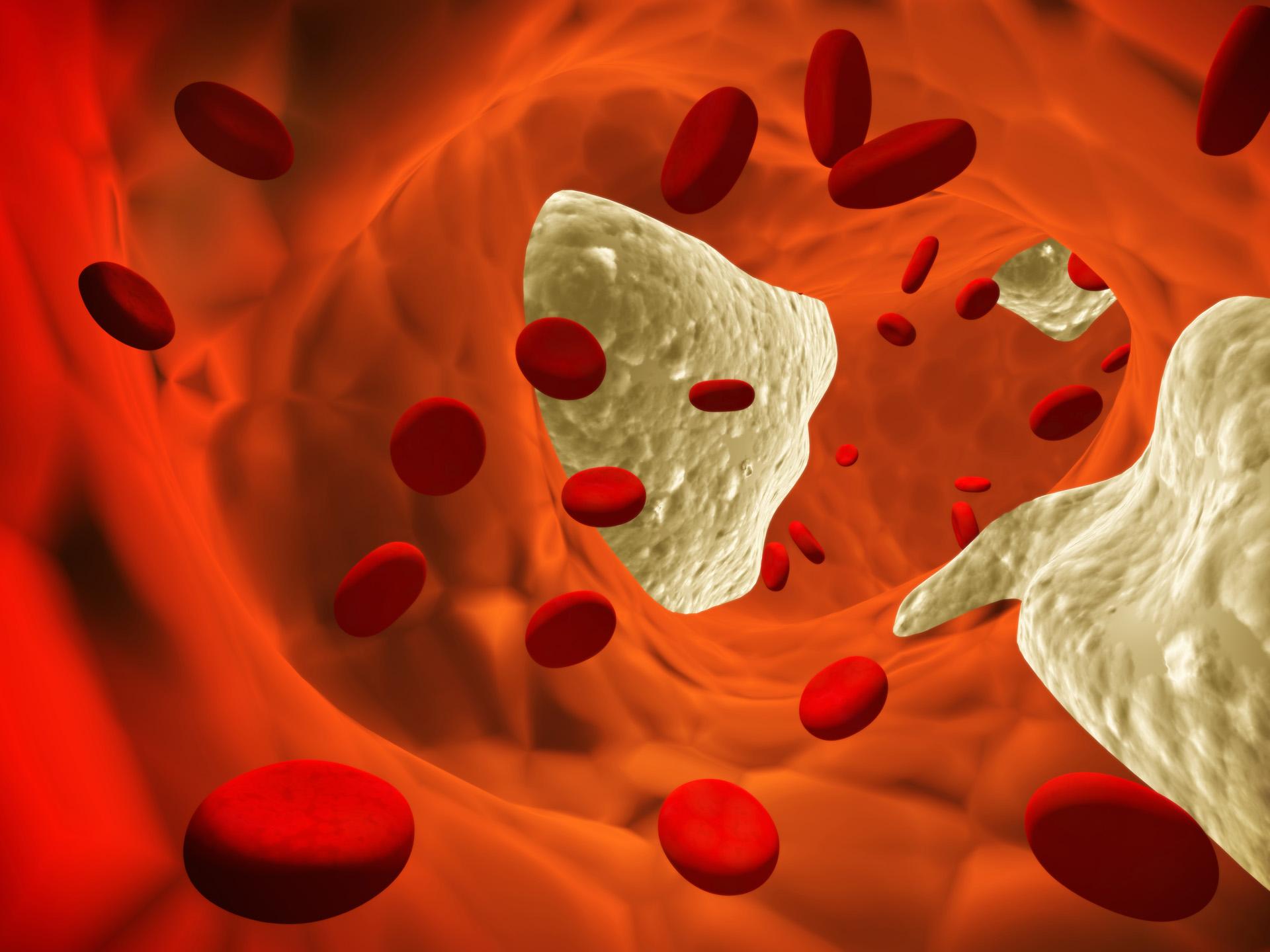 Θρόμβοι αίματος, η κύρια αιτία θανάτου σε νέες μητέρες thumbnail