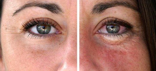 Δείτε πώς θα είναι το πρόσωπό σας σε 10 χρόνια! thumbnail