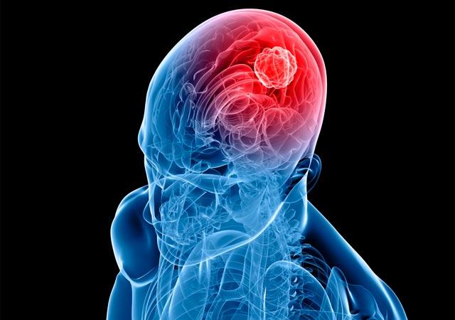 Όγκος στον εγκέφαλο: Τα συμπτώματα της ασθένειας που «χτύπησε» τον Β. Λυριτζή thumbnail