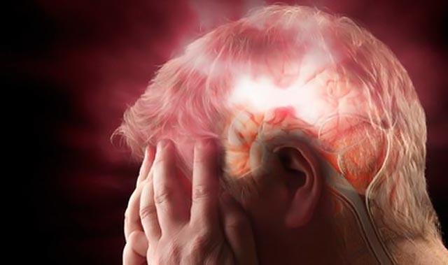 Τα SOS προειδοποιητικά σημάδια του εγκεφαλικού thumbnail
