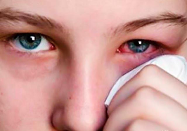 Επιπεφυκίτιδα: Ποια είναι τα συμπτώματα και πώς αντιμετωπίζεται; thumbnail