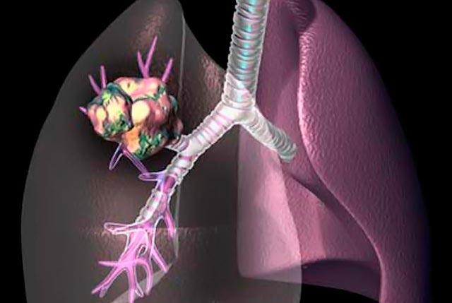 Καρκίνος του πνεύμονα: Νέα ερευνητικά δεδομένα thumbnail