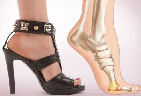 Ποια παπούτσια προκαλούν ορθοπεδικά προβλήματα;  thumbnail