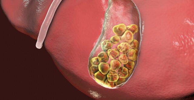 Χολαγγειίτιδα: Η επικίνδυνη λοίμωξη και φλεγμονή των χοληφόρων