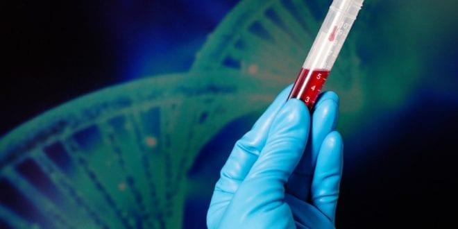 Αιμορροφιλία Β: Ποια είναι τα νέα ερευνητικά δεδομένα