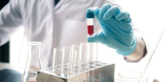 Ποιοι παράγοντες ευθύνονται για την υψηλή χοληστερίνη;