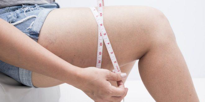 Τοπικό λίπος: Μπορεί να φύγει μονο με διατροφή;
