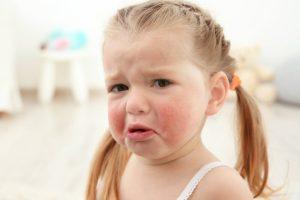 koritsaki allergia