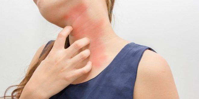 4 «μύθοι» για τις δερματικές αλλεργίες!