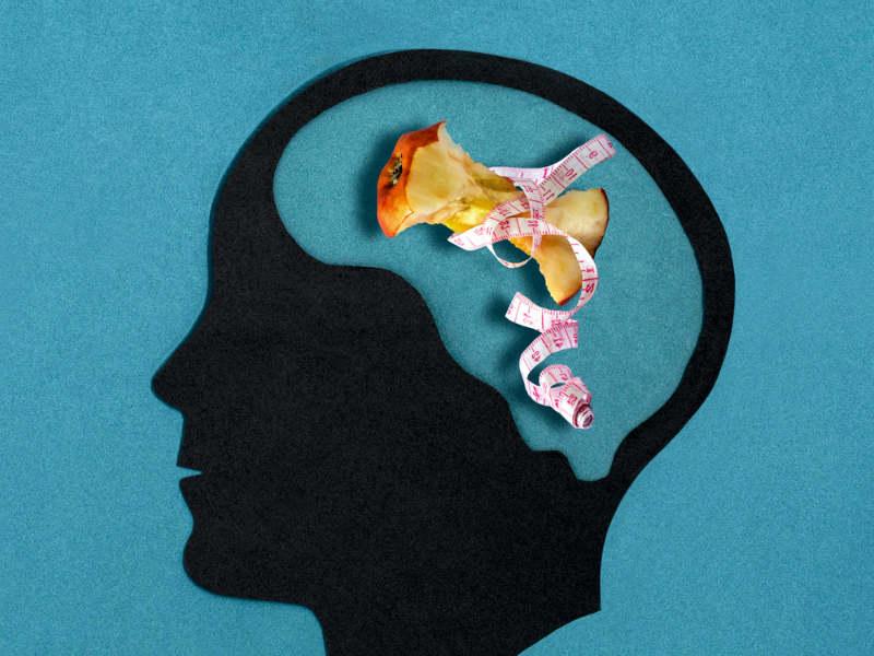 neuriki anorexia 1