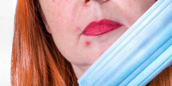 Τι-είναι-το-Maskne;-και-ποιες-οι-επιπτώσεις-της-πανδημίας-στο-δέρμα-μας;