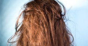 Λιπαρά μαλλιά